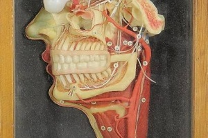 66/2456   [Anatomical models]. (Lehrmittelwerke Berlinische Verlagsanstalt) (early 19th cent.).